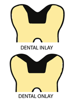 Dental Inlays dental onlays