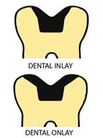 Dental Inlays dental onlays