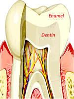 Dental erosion treatment or tooth erosion