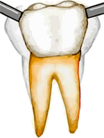 Adult loose tooth