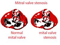 Mitra valve stenosis