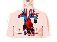 pacemaker procedure