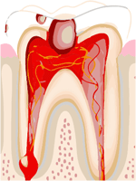 Pulpitis or Toothache