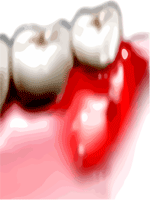 Tooth Abscess or Dental Abscess and Gum Abscess or periodontal Abscess