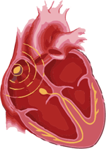 bradycardia symptoms
