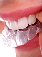 dental attrition