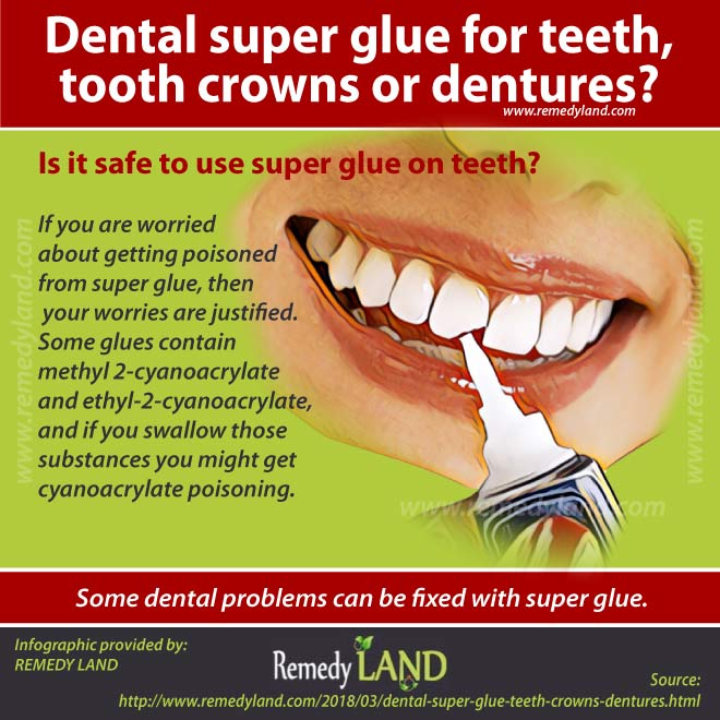Glue for dentures