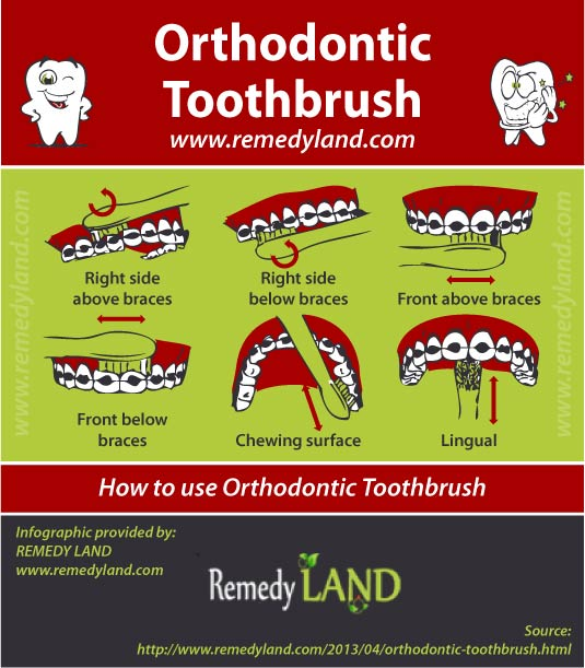 how-to-orthodontic-toothbrush.jpg