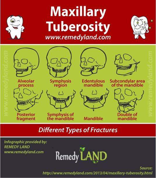 maxillary tuberosity fracture
