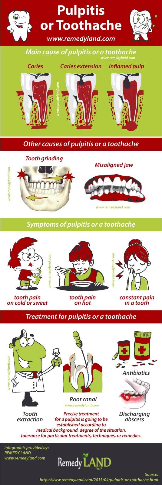 pulpitis toothache
