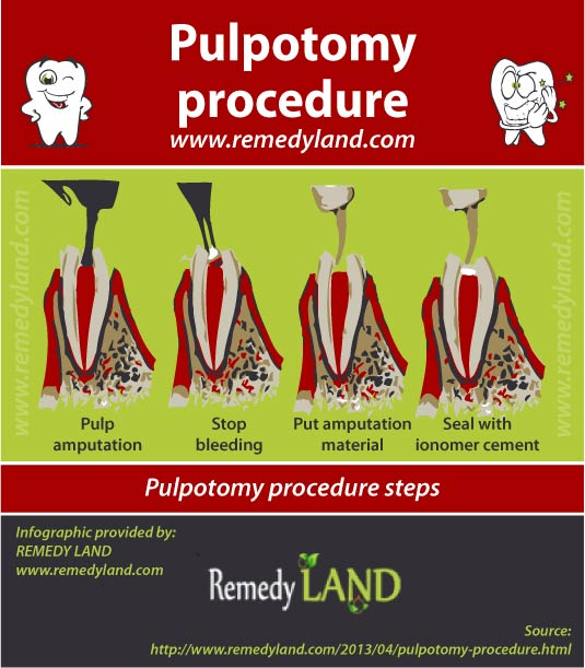 pulpotomy procedure steps