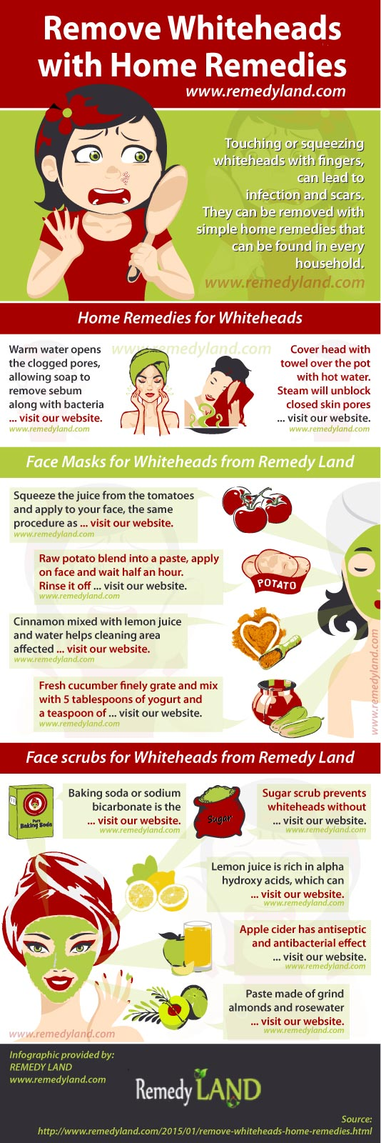 remove whiteheads with home remedies