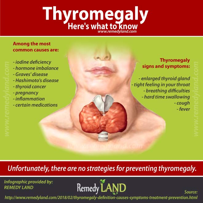 Thyromegaly Definition Causes Symptoms Treatment