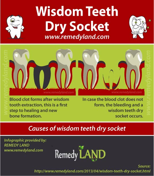 wisdom teeth dry socket