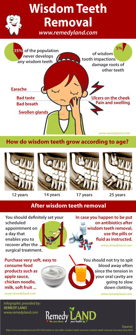Wisdom Teeth Removal Infographic